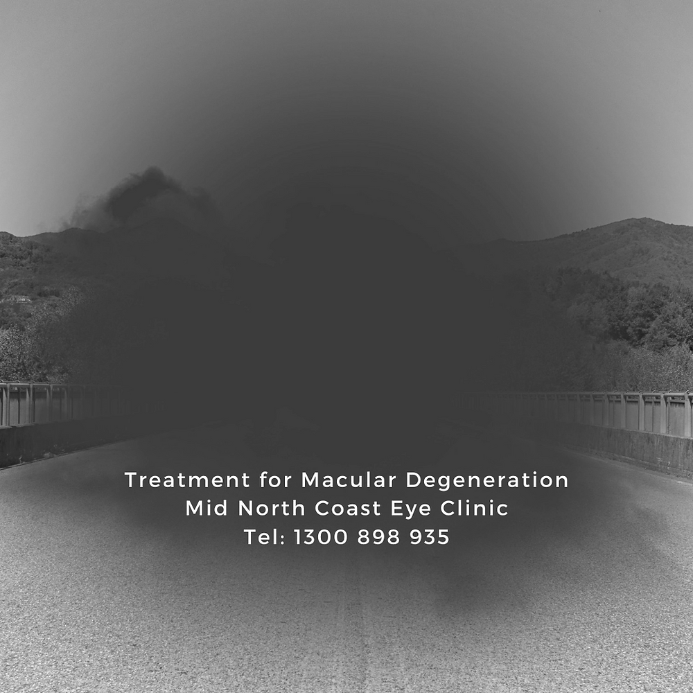 Early signs of Macular Degeneration