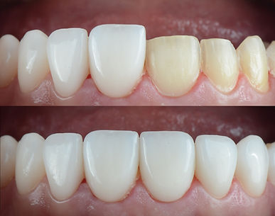 Dental veneers placement sequence, close