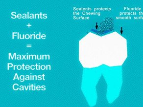 Let's Talk Fluoride & Sealants