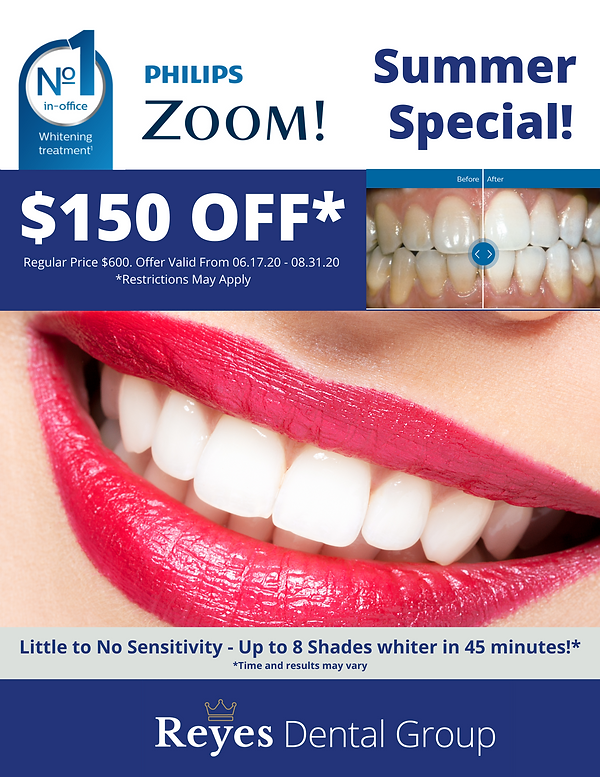 Reyes Dental Group - Zoom Whitening Summ