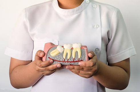 Dentist holding a wisdom teeth model.jpg