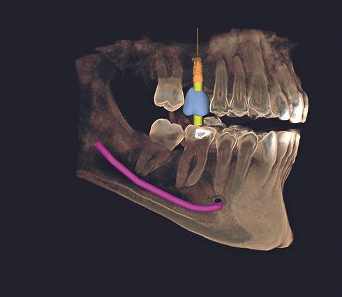 GALILEOS Implant-GCI-2 (1).jpg
