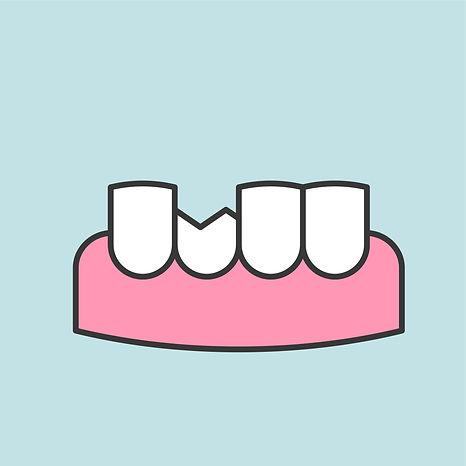 fractured broken tooth graphic.jpg