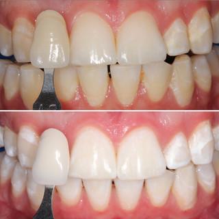 Reyes Dental Group Teeth Whitening.jpg