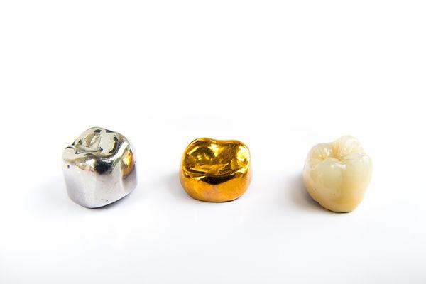 Dental ceramic, gold and metal tooth cro