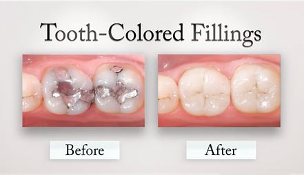 Tooth Colored Fillings.png