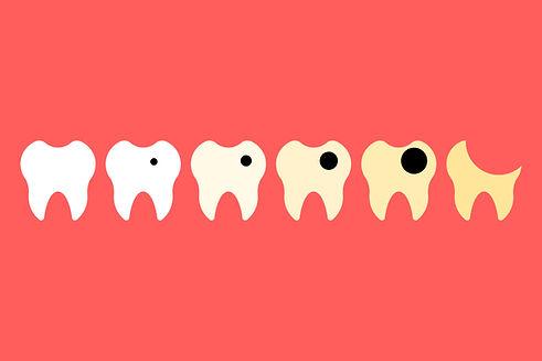 cavity process.jpg