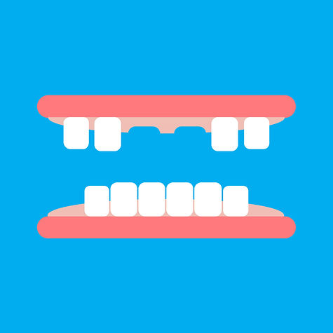 knocked out front teeth designed image (