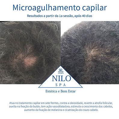 capilar.jpg