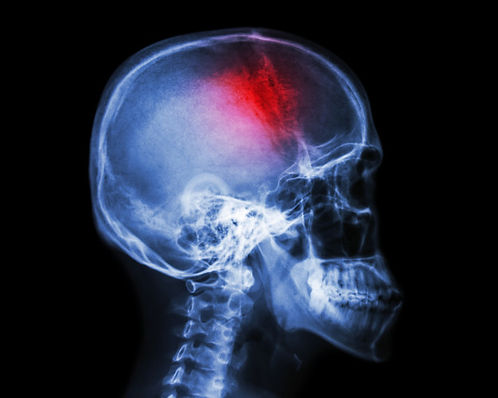 stroke-cerebrovascular-accident-film-x-r