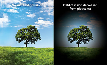 Fileld of vision