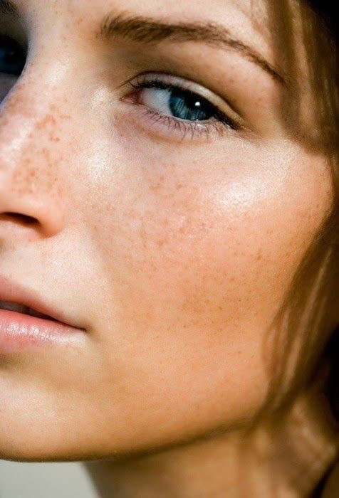 Young woman with blue eyes, freckles and glowing skin