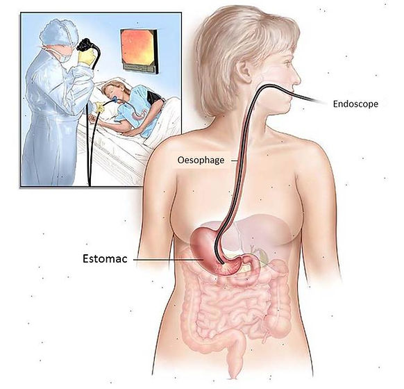 Endoscopie Digestive