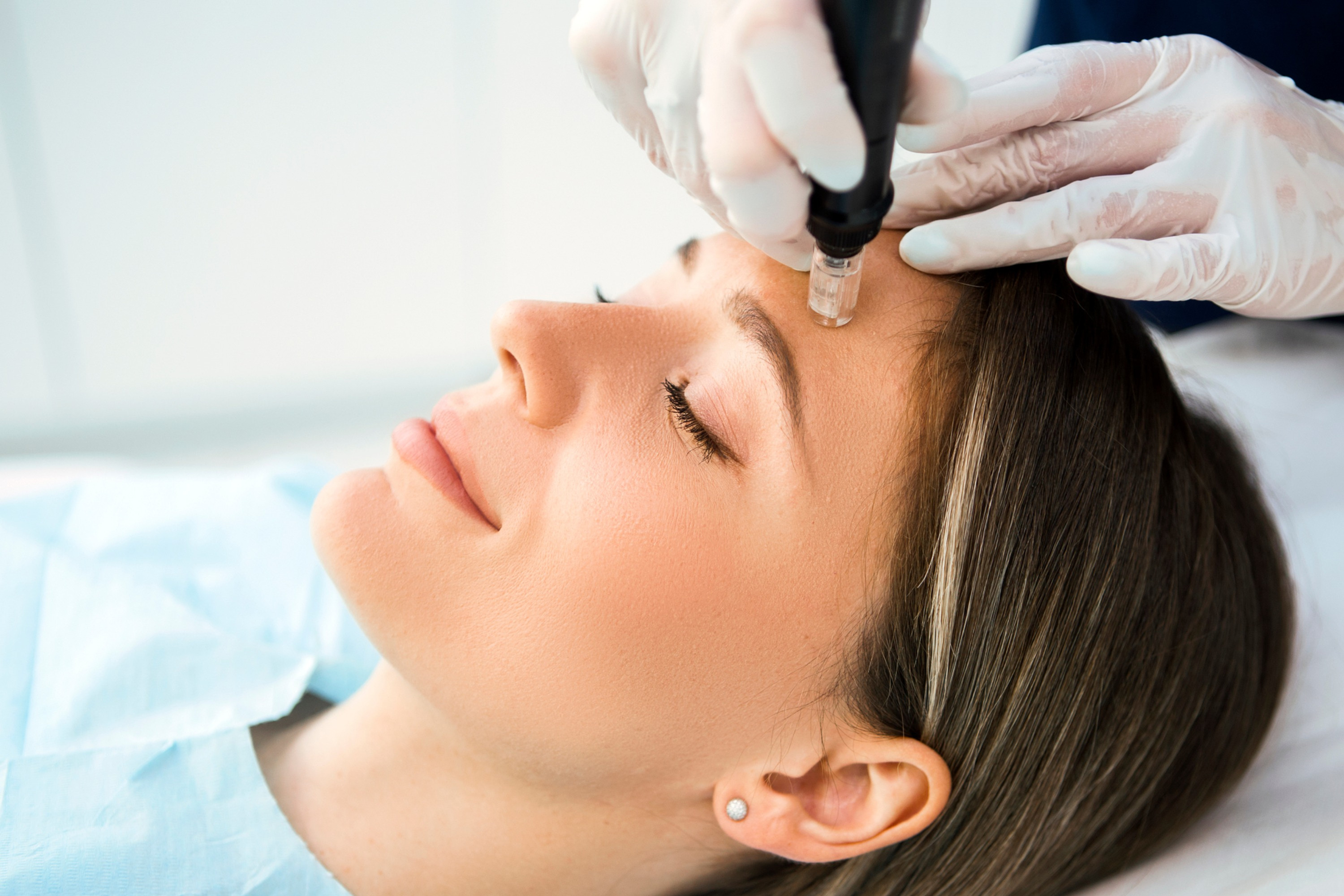 Microneedling Treatment with SkinPen®