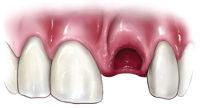avulsed tooth.jpg