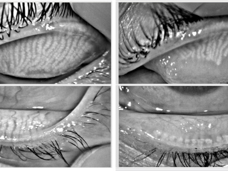 MGD: Meibomian Gland Dysfunction