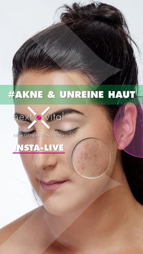 #Akne & unreine Haut