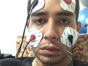 Homem de 30 anos tem paralisia facial após se infectar com a Covid-19