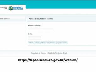 Estado cria plataforma para facilitar acesso a resultados de exames laboratoriais