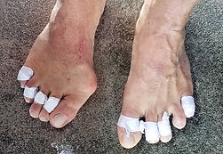 Damaged toes from rental fins.
