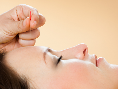 Learn how to Better Manage Headaches at Home