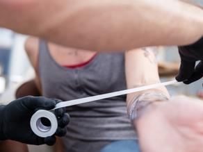 Cuidados Posteriores - Eliminación de Tatuaje con Láser