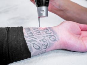 Preguntas Frecuentes - Eliminación de Tatuajes