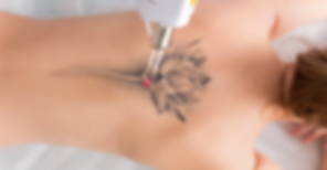 laser-tattoo-removal.png