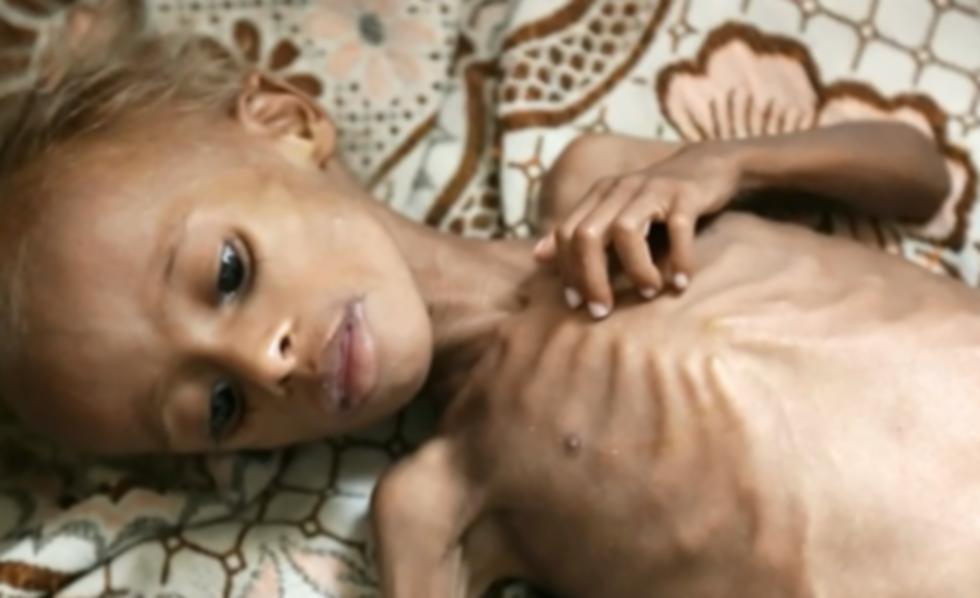 Yemeni Child 4-2_edited.png