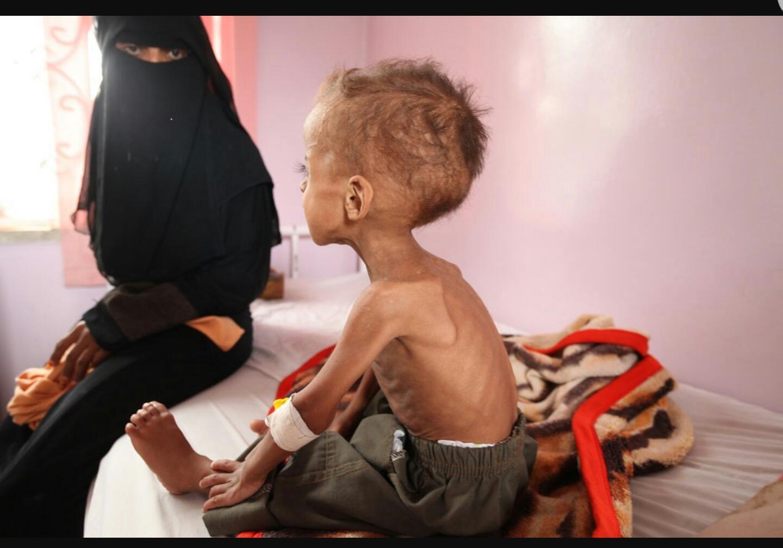 Yemeni Child 3
