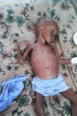 Yemeni Child 2
