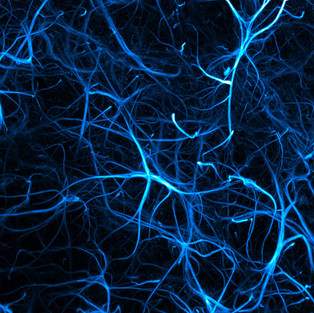 Image stack of GFAP-positive astrocytes