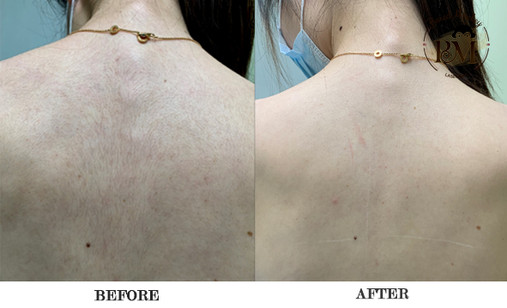 before and after-back.jpg