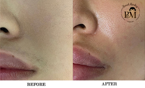 before and after-upper lip.jpg