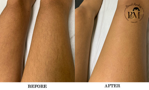 before and after-legs.jpg