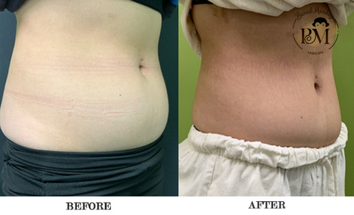 before and after-coolsculpting-stomach.j