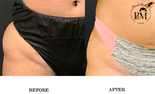 before and after-coolsculpting-hips.jpg