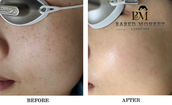 Piqo4 Pigment Lesion Removal