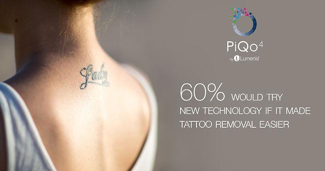 pico tattoo removal.jpg
