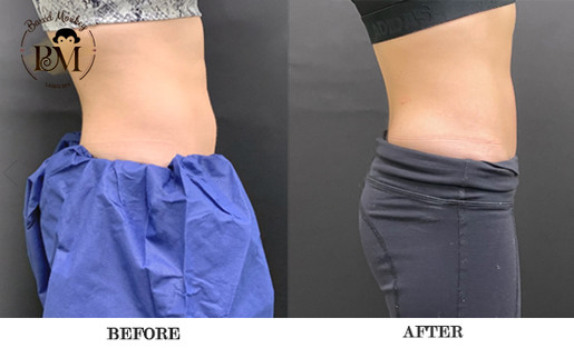 before and after-coolsculpting-stomch.jp