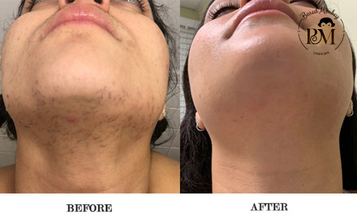 before and after-under the chin.jpg