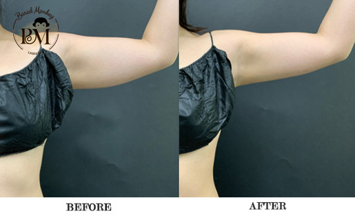 before and after-coolsculpting-arms.jpg