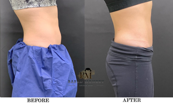 After one Coolsculpting treatments