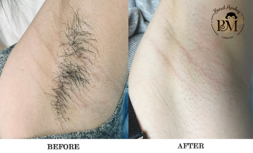before and after-underarms.jpg