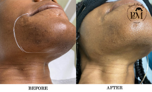 before and after-chin.jpg