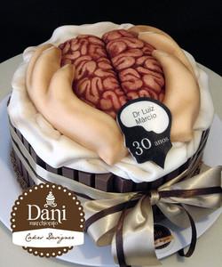 Kitkat Cérebro