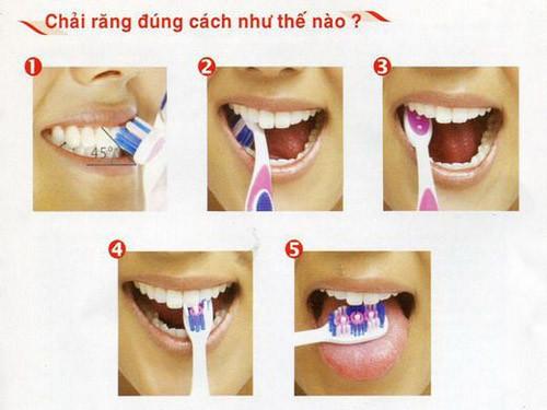 Các bước chải răng đúng.