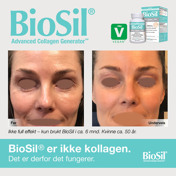 Biosil-before-after-300-10.jpg