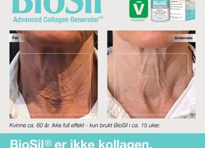 BioSil - Et av tidenes beste skjønnhetsprodukt