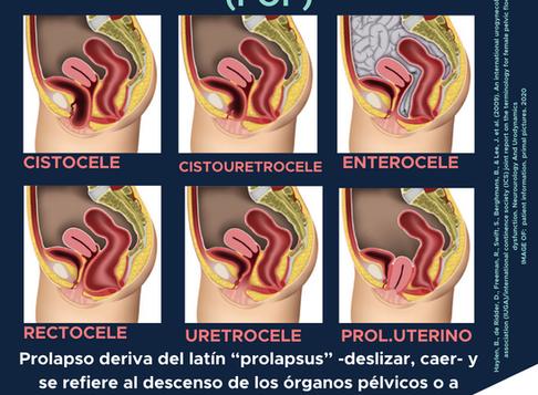 Prolapso de órgano pélvico (POP)